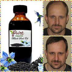 Balding Remedies Premium Organic Black Seed Oil/Natural Remedies and Hair Remedies For Growth, Hair Loss Remedies, Organic Black Seed Oil, Hair Growth For Men, Male Pattern Baldness, Oil Benefits, Grow Hair, Bellisima, Natural Remedies