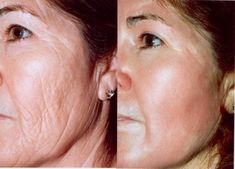 Peeling de Fenol e Antes e Depois 6