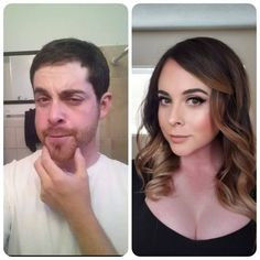 London Trans Clinic Before and After FFS or Facial Feminization Surgery. Male To Female Transgender, Transgender People, Transgender Girls, Transgender Before And After, Mtf Before And After, Male To Female Transition, Mtf Transition, Transformation Mtf, Crossdressers