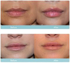 Juvéderm™ Dermal Filler   Juvéderm is one of the best non-invasive procedure for smoothing out lines around your nose, mouth and hands.