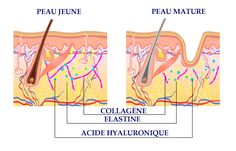 The outer layer of the epidermis acts as a protective barrier and damage to it due to use of skin care products may lead to sensitive skin issues. Layers Of The Epidermis, Hyaluronic Acid, Collagen, Sensitive Skin, Lab, Collages, Labs