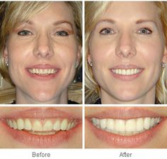 cosmetic dentistry before after photo Dental Health, Dental Care, Health Care, Dental Fillings, My Dentist, Dental Cosmetics, Free Dental, Dental Crowns, Before After Photo