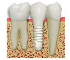 Keramické implantáty sú hypo - alergenné a teda vhodné hlavne pre pacientov s alergiami.