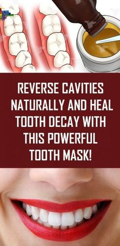 Reverse Cavities Naturally and Heal Tooth Decay With This Powerful Tooth Mask! Reverse Cavities Naturally and Heal Tooth Decay With This Powerful Tooth Mask! What Is Tooth Decay, What Causes Tooth Decay, Cure Tooth Decay, Heal Cavities, How To Prevent Cavities, Reverse Cavities, Remedies For Tooth Ache, Receding Gums, Oral Hygiene
