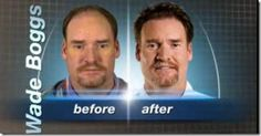 Whose Before and Afters are you Really Looking at? #hairtx #drsamlam #hairdisorders #hairtransplant