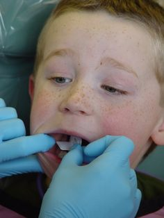 When the child enjoys the first dental visits, he will readily associate it with a positive experience and will not have any ill feelings towards the dentist. The positive experience will in itself help the child go through dental procedures without worries or anxiety.