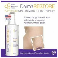 Visit our site http://laserstretchmarkremovalguide.net for more information on Laser Stretch Mark Removal.Laser stretch mark removal is a rapid and simple way to get rid of stretch mark scars completely. Laser treatment supplies a faster and pain-free way to eliminate stretch marks completely. If you have big or deep marks or scars laser therapy could be the appropriate method for you.