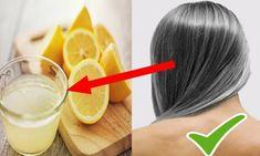 Lemon Coconut, Coconut Oil, Lemon Juice Hair, Hair Turning White, Hair Dye Removal, Garlic Health Benefits, Natural Treatments, Health And Nutrition, Healthy Skin