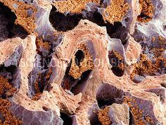 Bone marrow, SEM. Scanning electron micrograph (SEM) of bone marrow in cancellous bone tissue.