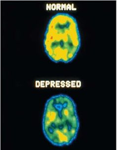 Normal Brain / Depressed Brain