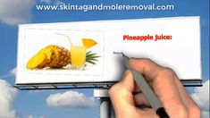 Removing Skin Tags - What Is The Best Solution For Removing Skin Tags? Mole Removal Cream, Natural Mole Removal, Skin Tag Removal, Plastic Cutting Board, Remedies, Breast, How To Remove, Good Things, Tags