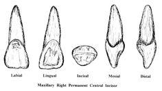 Incisors Dentistry, School Stuff, Tooth, My Love, Dental Anatomy, Teeth, Dental