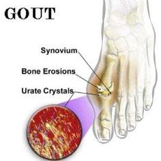 Gout natural remedies @www.natural-homeremedies.org