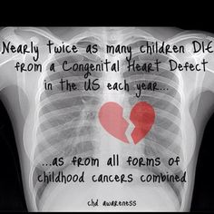Congenital Heart Defect~ not enough people realize that!
