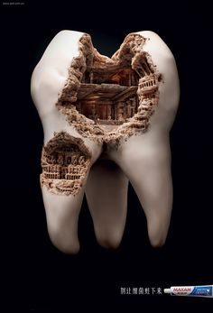 Roman Civilization Cavity is a part of a print advertising campaign for Maxam's toothpaste. The idea is to not let germs settle down on your teeth, or else you will end up with a Colosseum cavity. The design was made by agency JWT Shanghai. of two pins] Dental Art, Dental Teeth, Smile Dental, Smile Teeth, Braces Smile, Teeth Braces, Dental Life, Best Ads, Photoshop