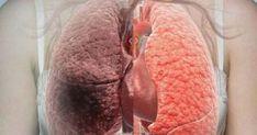 Καπνίζετε; Αυτές οι 6 τροφές καθαρίζουν τους πνεύμονες από τη νικοτίνη ο χρηστης xrisi papadaki αποθηκευσε στο πινακα ΚΑΠΝΙΣΜΑ