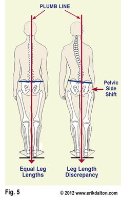 Plumb Line Leg length discrepency