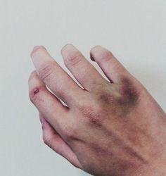 7 Deadly Sins, Bigbang, It Hurts, Blood, Rebel, Aesthetics, Bruises Makeup, Bruises Aesthetic, Random
