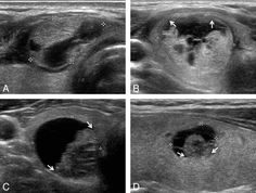 Representative sonographic images of the 4 diagnostic categories for PCTNs. A, Benign: transverse US image of a right isthmic thyroid nodule (1.1 × 1.7 × 1.8 cm) showing an ovoid shape, isoechogenic and smooth-margined solid component, and a centrally and eccentrically located cystic component in a 30-year-old woman. The nodule was surgically resected because of coexisting thyroid malignancy (nodular hyperplasia by pathology). B, Probably benign: transverse US image of a right thyroid nodule…