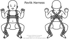 The Pavlik Harness is one type of brace used to treat DDH. It has straps that are fastened around the baby's legs and held up by shoulder and chest straps. This holds the hips and knees up with the legs apart. This is the best position for the hip joint to be in. It allows contact between the thigh and hip bones and helps strengthen the muscles and ligaments of the hip while it is developing.