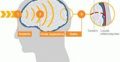 Los golpes leves también pueden dañar el cerebro