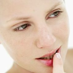 Oral Herpes Symptoms and Treatments