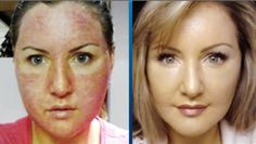 Cosmetic Surgery: Clinics, Prices, Cost & Reviews - MEDIGENCE