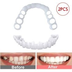 2PCS/Set Perfect Fit Teeth Whitening Fake Tooth Cover Snap On Silicone Smile Veneers Teeth Upper Beauty Tool Cosmetic Teeth