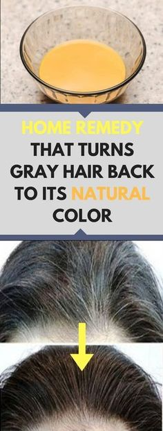 Everyone, especially women want to have lustrous, thick and long hair. Everyone tries to have a luscious hair which has enough strength, shine, and [...]