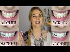 Weiße Zähne in 5 Minuten | selber aufhellen - YouTube