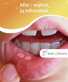 Life Hacks, Healthy, Tips, Ideas, Cold Sore, Therapy, Canker Sores, Advice, Lifehacks