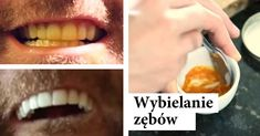 Best dental clinic root filling procedure,endodontist near me lower wisdom tooth extraction,children and tooth decay teeth whitening. Teeth Whitening Remedies, Natural Teeth Whitening, Natural Bleach, Teeth Care, Healthy Teeth, White Teeth, Natural Solutions, Natural Home Remedies, Turmeric