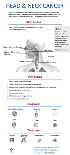 Most head and neck #cancers begin in the cells that line the mucosal surfaces in the head and neck area, e.g., mouth, nose, and throat..  http://dhrc.in/head-and-neck-cancer-treatment-hospital-india.html