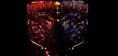 Imagerie médicale : les vaisseaux sanguins comme vous ne les avez jamais vus