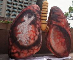 Human Lungs Cancer HLC05