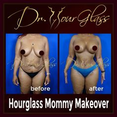Who wouldn't be happy if you achieve this amazingly #sexy body! Well, this patient underwent a combined procedure called #hourglassmommymakeover made possible by #drhourglass. She had the #hourglasstummytuck and #wonderbreastlift with implant procedure. #drcortes #drcurvas #tummytuck #lipo #wonderbreast #mommymakeover #plasticsurgeon #houstontopsurgeon