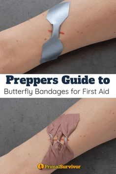 A Guide to Using Butterfly Bandages for First Aid (Store Bought & DIY Versions) Guide to Butterfly Bandages for First Aid. Butterfly bandages get their name because they have a narrow non-adhesive area in the center and adhesive wider sides, maki Survival Life, Homestead Survival, Survival Food, Wilderness Survival, Camping Survival, Outdoor Survival, Survival Prepping, Survival Skills, Survival Quotes
