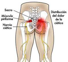 Centro De Masoterapia Maya: Medicina China: dolor del nervio ciático. Body Therapy, Massage Therapy, Low Back Pain, Reiki, Gym, Workout, How To Plan, Health, Mendoza