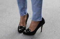 30471c6df8b0 charlotte olympia heels after bunion  CharlotteOlympiaHeels Hallux Valgus