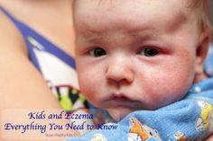 Kids and Eczema: Eve