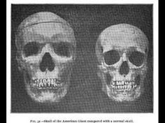 Giant Human Skeletons: Marion County, West Virginia Giant's Graves