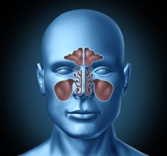 Acute sinusitis, if ignored for long enough, may aggravate into chronic sinusitis that has various serious health  implications requiring immediate medical attention. Visit here @ http://www.houstonadvancedsinus.com/blog/acute-sinusitis-causes-symptoms-and-treatment-options/