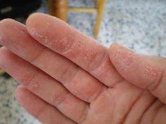 Bệnh á sừng là gì ? Nguyên nhân, triệu chứng và phòng tránh bệnh á sừng