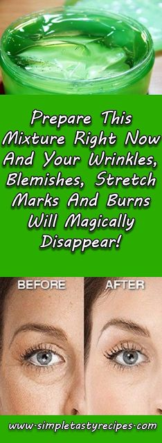 Prepare This Mixture Right Now And Your Wrinkles, Blemishes, Stretch Marks And Burns Will Magically Disappear!
