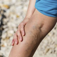 Natural Remedies For Varicose Veins Homecare in Eufaula AL: One of the most common leg vein problems for seniors is varicose veins. Health problems due to varicose veins range from mild to severe, but seniors have a higher risk of complications. Skin Tag On Eyelid, Skin Tags On Face, Leiden, Varicose Veins During Pregnancy, Get Rid Of Spider Veins, Skin Tags Home Remedies, Apple Cider Vinegar For Skin, Varicose Vein Remedy, Skin Tag Removal