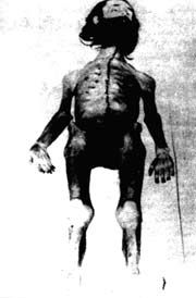 Terrorist who starved himself in 1974