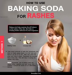 Rashes are a common occurrence when suffering from any skin disorders such as eczema, psoriasis, insect bites, acne. Using of baking soda for rashes in the Face Rash Remedies, Rashes Remedies, Skin Tags Home Remedies, Skin Care Remedies, Baking Soda Shampoo, Skin Rash, Sagging Skin, How To Get Rid Of Acne, Beauty