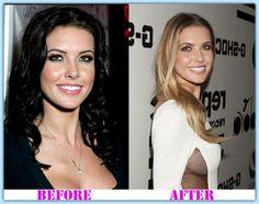 Audrina Patridge plastic surgery before and after Audrina Patridge Plastic Surgery #AudrinaPatridgePlasticSurgery #AudrinaPatridge #plasticsurgeonyork