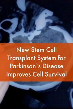 New Stem Cell Transplant System for Parkinson's Disease Improves Cell Survival Gut Brain, Brain Health, Parkinsons Disease Treatment, Parkinsons Exercises, Parkinson's Dementia, Cord Blood Registry, What Is Stem, Cord Blood Banking, Teaching Biology