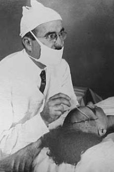 The first prefrontal lobotomy in the United States was performed in 1936 on 63 year old Alice Hood Hammatt by Dr. Walter Freeman and Dr. James Watts.